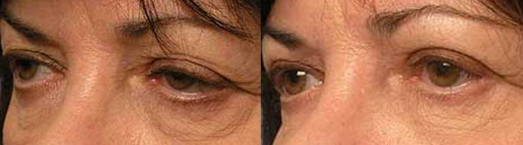 canthoplasty taban md