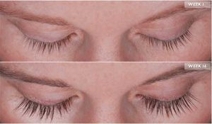 Los Angeles Eyelash Thinning Solution