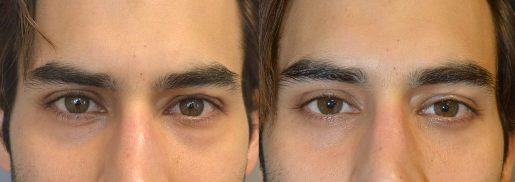 Before (left) and after (right) 27-year-old male actor who complained of looking tired on camera due to under eye bags and dark circles (hollowness). He underwent cosmetic lower blepharoplasty (transconjunctival with fat bags repositioning).