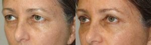 Beverly Hills Sagging Upper Eyelids Procedure