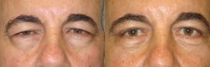 Beverly Hills Drooping Upper Eyelids