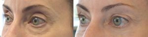 Beverly Hills Cosmetic Eye Rejuvenation