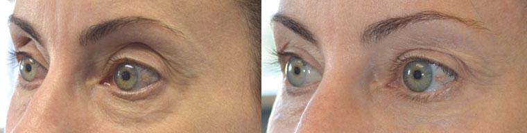 Beverly Hills Cosmetic Eye Rejuvenation