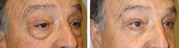 Did you know blepharoplasty is normally an in-office procedure?