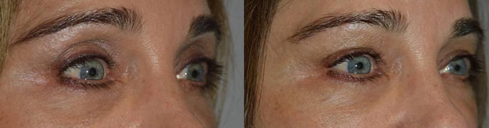 Taban-eye-filler-belotero-sideview-1-26-16-2