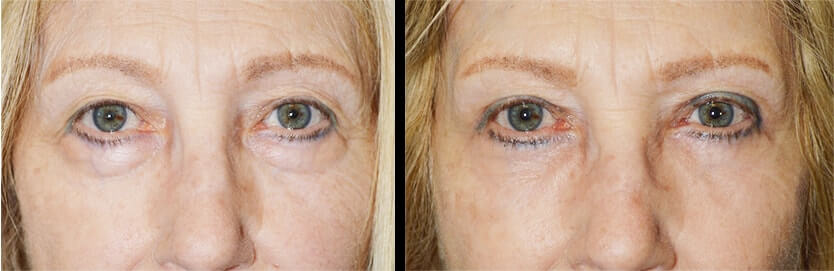 Beverly Hills Eye Lift Procedure