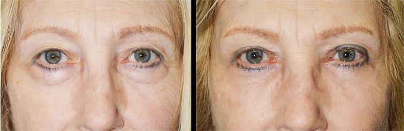 Beverly Hills Eye Lift Procedure
