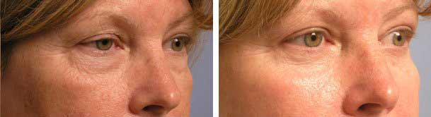 Before and 3 months after quad-blepharoplasty