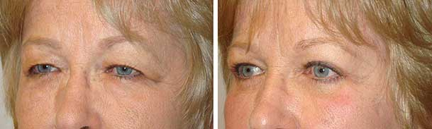 Eye Plastic Surgery Expert Santa Barbara