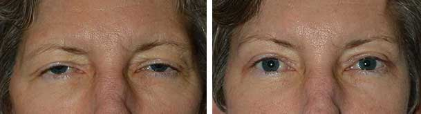 blepharoplasty surgeon specialist los angeles