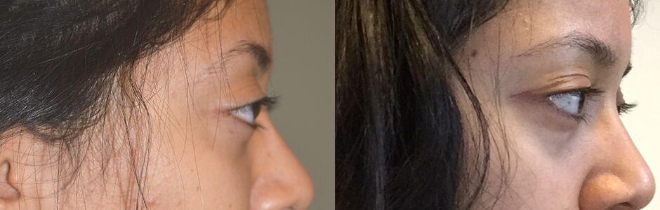 Bulgy Eyes Treatment LA