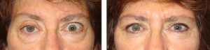 Before (left) and 3 months after (right photo) of right upper eyelid ptosis surgery, left upper eyelid retraction procedure and bilateral lower blepharoplasty.