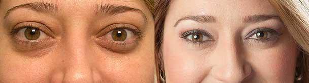 Bulgy Eye Treatment