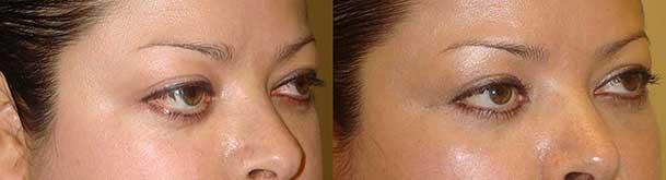 Cosmetic Orbital Decompression