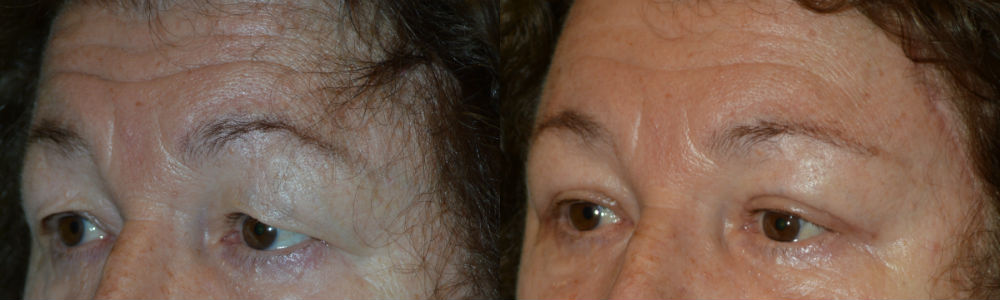 Correct cosmetic effects of drooping upper eyelids