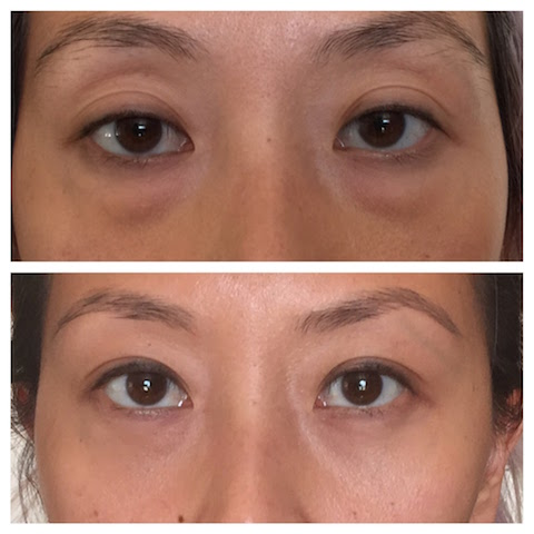 Lower eyelid bags transconjunctival lower blepharoplasty