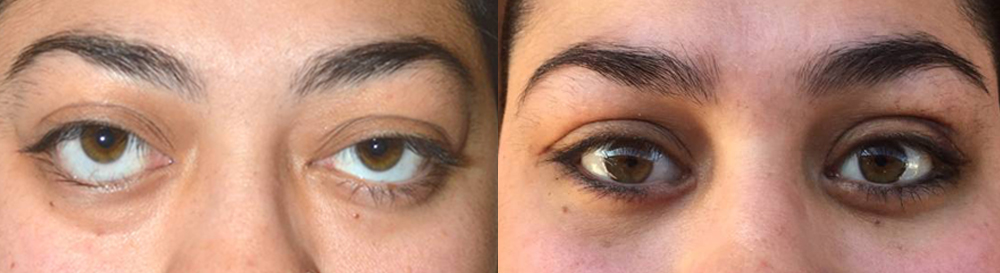 Before (left), 24 year old female, with severe bulgy eyes and lower eyelid retraction from Grave's Disease, with a significant change in eye appearance and function. After (right), 1 month after bilateral orbital decompression surgery and lower eyelid retraction surgery. Note improved eye appearance.