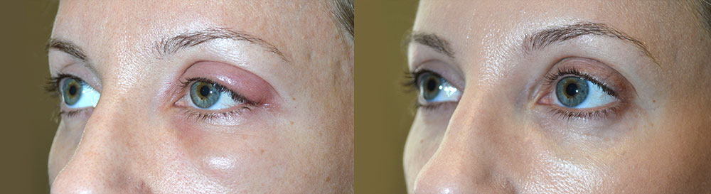 Before (left) 37 year old female, with large left eyelid stye (chalazion). After (right) 1+ month after left upper eyelid stye (chalazion) drainage.