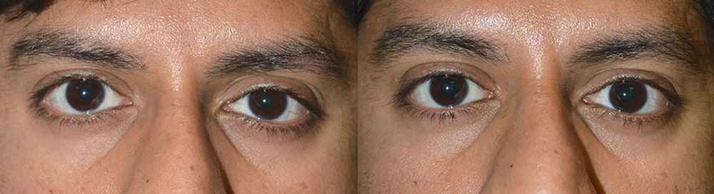 Before (left) Young male, with eye size asymmetry, secondary to right upper eyelid retraction. After (right) 3 months after right upper eyelid retraction correction. Note improved eye symmetry.