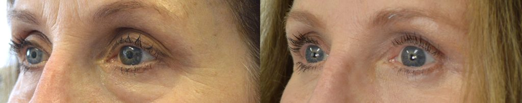 71 year old female, underwent cosmetic upper blepharoplasty, lower blepharoplasty (transconjunctival with fat repositioning and skin pinch), upper eyelid ptosis surgery, and lateral pretrichial brow lift, under local anesthesia.