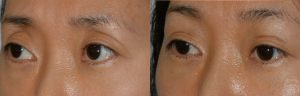 Young Asian female, with prior aggressive upper blepharoplasty, where too much fat was removed, resulting in hollow sunken upper eyelids, with excess folds. She received upper eyelid filler injection to give more natural Asian eyelids and shape. Before and 1 month after eyelid filler treatment photos are shown.