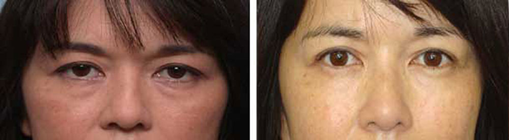 Before and After Eyelid Lift Photo for Asians
