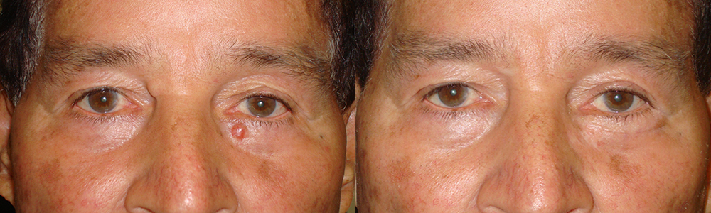 60 year old male, with left lower eyelid basal cell carcinoma. The eyelid skin cancer was removed and the eyelid reconstructed under sedation anesthesia. Note natural appearing results with minimal scarring. Before (left) and 3 months postoperative (right) photos are shown, and complete eyelid function.