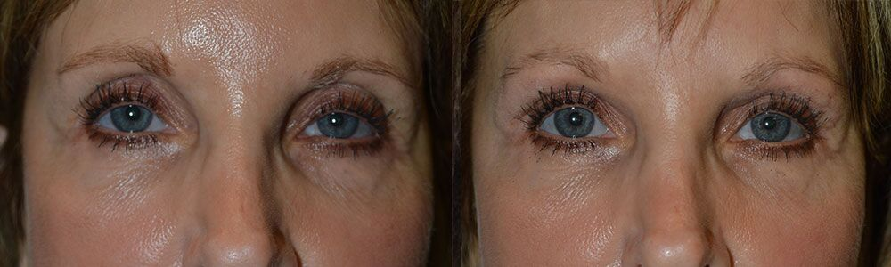 Before and After Second Eyelid Surgery in LA