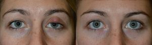 Ocular Infection Los Angeles Treatment