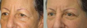 Browlifting Eyelid Surgery in Los Angeles