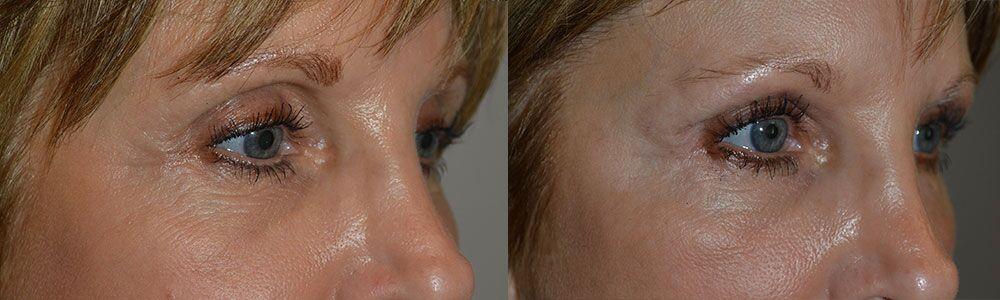 belotero-injection-eyelid-hollowness-treatment