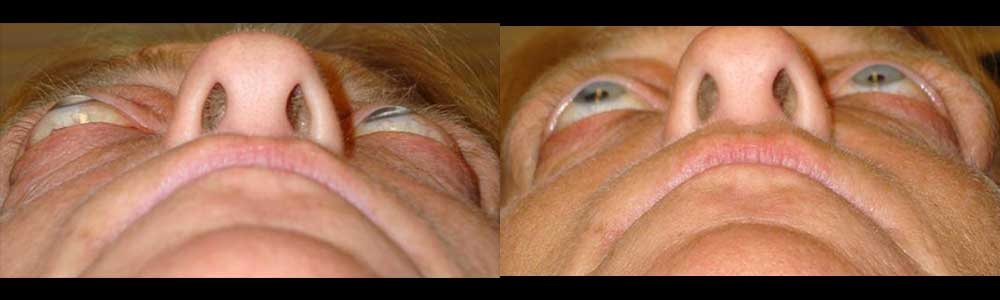 Middle age woman, with Graves related eye proptosis (protruding eyes), underwent bilateral orbital decompression surgery (with fat and bone removed behind eyeballs, creating more room for the eyeball to sink back). Preop (left) and 3 months postoperative (right) photos show the position of the eyeballs.