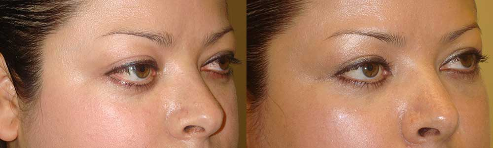 Young female with mild to moderate protruding eyes (large eyes) underwent orbital decompression surgery through hidden eyelid incisions (with fat and some orbit bone removed behind the eyeball) which allowed the eyeballs to go back, giving the desired eye shape and size. Preop and 3 months postoperative photos are shown.