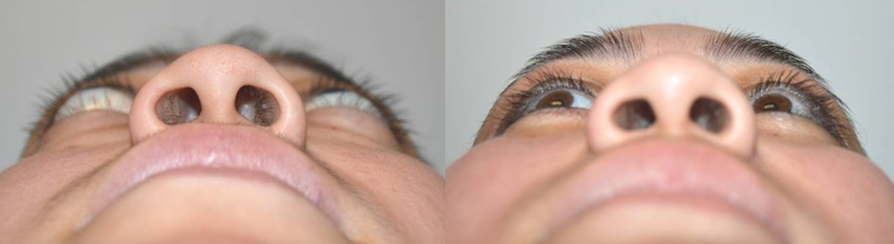 24 year old female, was very unhappy about severe bulging eyes and lower eyelid retraction from Grave's disease, with significant change in eye and facial appearance. She also suffered from lagophthalmos (unable to fully close her eyes) with dry eyes. She underwent bilateral orbital decompression surgery (bone and fat removed from behind the eyeball to push back the eyeball) and lower eyelid retraction surgery (to raise the lower eyelids). Note improved eye appearance and function (eye is able to close now). Before and 2 months postoperative photos are shown.