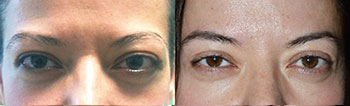 38 year old female, with bulging protruding eyes from Graves disease underwent bilateral orbital decompression surgery (bone and fat removed from behind the eyeball) resulting in eyeball going back, giving more natural eye shape and function. Preoperative and 3 months postoperative photos are shown. (You can listen to this patient share her story by visiting the video of her on the testimonial page.)