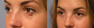 Eyelid Infection Removal Procedure