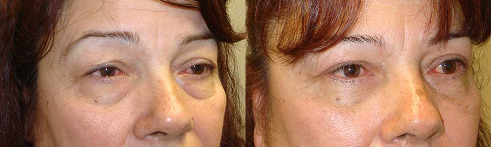 Cosmetic Droopy Eyeball Operation Procedure