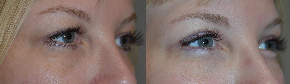 Upper Eyelid Extra Skin Removal Procedure