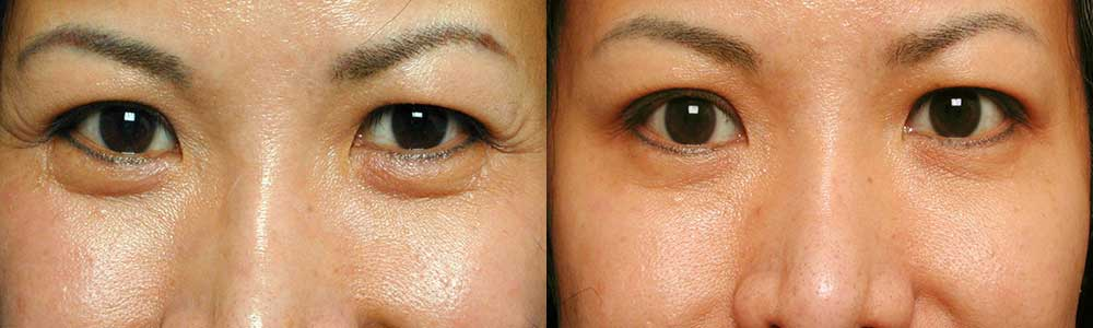 Young female, with classic crow's feet (wrinkles in the outer corner of the eyes) received Botox injection. Before (left) and 1 week after Botox treatment (right) photos are shown.