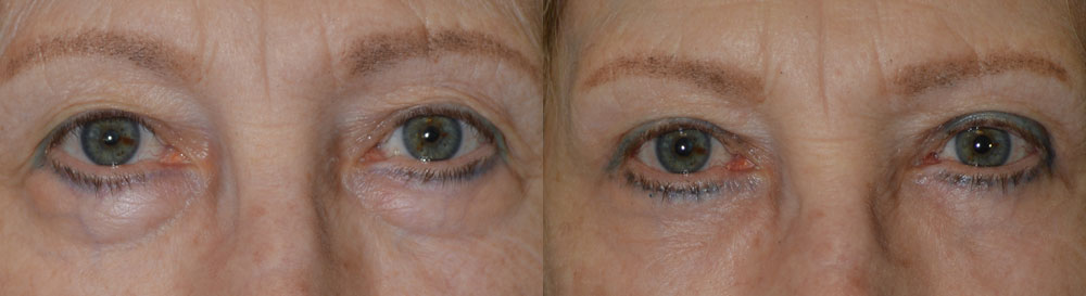 68 year old female, wanted eye rejuvenation to less tired and old. She has extra upper eyelid skin, resting on her lashes, which prevent proper application of makeup. She also has under eye bag (fat prolapse). She underwent cosmetic quad-blepharoplasty, meaning bilateral upper blepharoplasty (with skin removed from upper eyelids) and bilateral lower blepharoplasty (transconjunctival incision with fat redraping), under local anesthesia in the office. Note improved, natural eye appearance with patient looking more rested and youthful. Preop and 3 months postoperative photos are shown.
