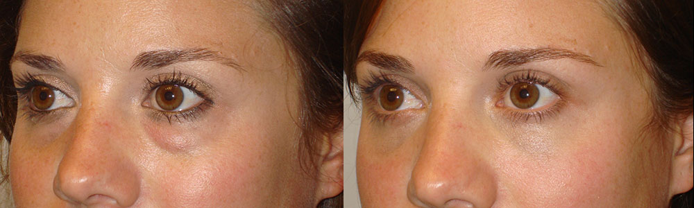 26 year old female, was unhappy about her inherited under eye bags (puffy under eyes, left eye worse), which is due to fat prolapse. She wanted to have more smooth under eye area, without looking hollow. She underwent transconjunctival (stitch-less inside eyelid incision) lower blepharoplasty with fat redistribution, where the bags/fat was repositioned to fill the hollow part below it (tear trough deformity). The procedure was done under local anesthesia in the office. Note improved natural eye appearance, looking more rested. Before and 2 months postoperative photos are shown.