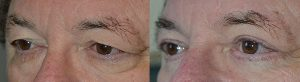Under Eye Bag Removal by Los Angeles Oculoplastic Surgeons