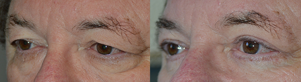 """67 year old male, with saggy upper eyelids and under eye bags, wants eyelid rejuvenation. He underwent cosmetic eyelid surgery including upper blepharoplasty (""""eyelid lift"""" to remove excess skin and tighten muscle) along with lower blepharoplasty (transconjunctival with fat repositioning and skin pinch). Notice more youthful, rested eye appearance in the after photo."""