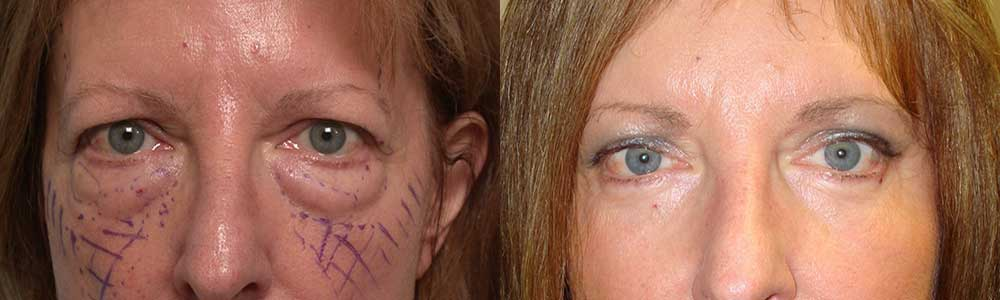 """44 year old female, with puffy upper and lower eyelids and heavy forehead, underwent cosmetic upper blepharoplasty (""""eyelid lift""""), lower transconjunctival blepharoplasty (under eye fat removal using stitch-less inside eyelid approach), and endoscopic forehead lift, under sedation anesthesia. Note more rested, younger eye appearance with natural results. Preop and 3 months postoperative photos are shown."""