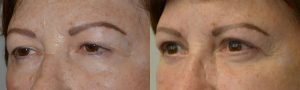 Middle age woman, with heavy droopy upper eyelids (ptosis) and excess upper eyelid skin and under eye bags, wanted eye rejuvenation. She underwent cosmetic eyelid surgery including upper eyelid ptosis repair (to lift the droopy upper eyelids), upper blepharoplasty (to remove excess upper eyelid skin), and lower blepharoplasty (transconjunctival with fat repositioning). 3 months postoperative photos show improvement in eye appearance, with more youthful natural look.