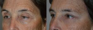 60+ year old female, complained of droopy upper eyelids, saggy eyebrows, bags under eyes, and wrinkles around eyes. She wanted eyelid lift and others procedures to make her eyes look better. We note she upper eyelid ptosis (droopy upper eyelids), excess skin in upper eyelids, droopy outer eyebrows, and under eye fat prolapse. She underwent cosmetic eyelid plastic surgery to include upper eyelid ptosis surgery (to raise upper eyelids and open eyes), upper eyelid blepharoplasty (to removed excess upper eyelid skin), lateral brow lift (using hidden temple pretrichial incision along the hairline), and lower transconjunctival blepharoplasty (with fat repositioning where the fat bags were distributed to fill in hollow under eye area). All the eyelid procedures were done in one setting, under local/sedation anesthesia, with practically painless recovery. Preop and 3 months postoperative photos are shown. Note more youthful eye appearance with natural results, with better eye opening, better brow contour, and less wrinkles and bags around eyes.