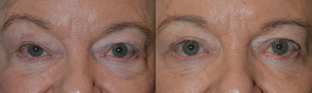 "65+ year old female, complained of eye size asymmetry with right eye smaller (secondary to droopy right upper eyelid, ptosis). Note the right eyebrow is raised in order to help lift the droopy right upper eyelid. She underwent right upper eyelid blepharoptosis repair (droopy eyelid surgery; ""lid lift"") under local anesthesia. Note the right eyebrow becomes more relaxed with improved eye symmetry in the 2 months postoperative photo."