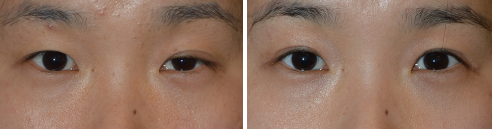 Asian Female Upper Eyelid Surgery in Los Angeles