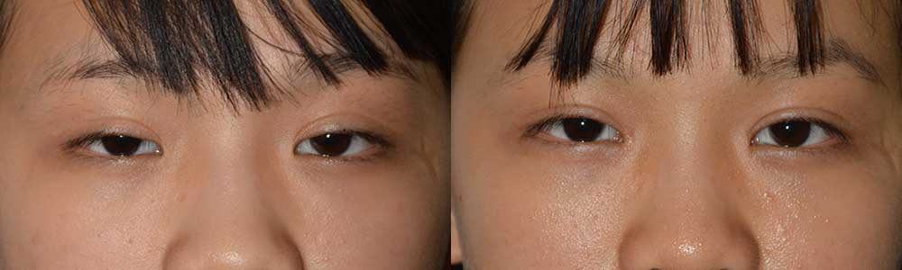 Young Asian female, with inherited epicanthal folds (in the medial part of the eyes, close to the nose). She underwent bilateral medial epicanthoplasty (under local anesthesia) to reduce the eyelid folds, in natural way. Preop (left) and 3 months postoperative (right) photos are shown.