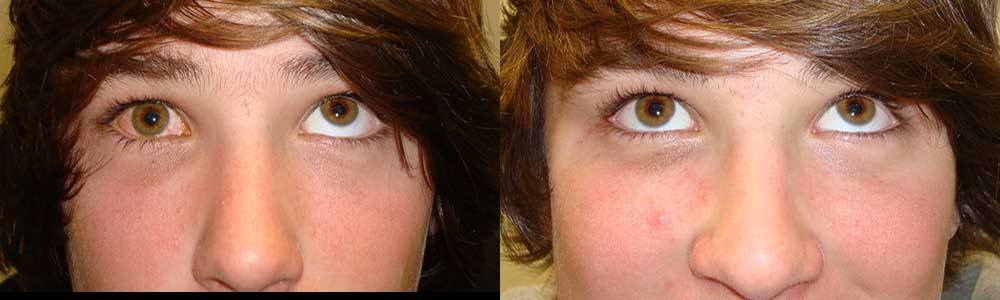 Young boy, with right orbital blow out fracture (secondary to golf ball injury) with inability to move the right eye up (left photo). He underwent orbital fracture surgery with implant placement (through hidden inside eyelid, conjunctiva incision; stitch-less) with eye movement restored as shown in this 3 months postoperative photo (right photo).